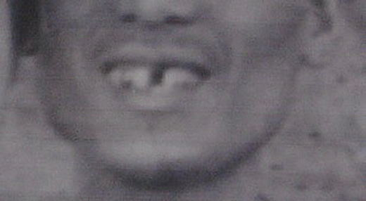 佐伯祐三左1番前歯欠損.jpg